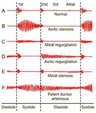 Phonokardiogramme von Herztönen